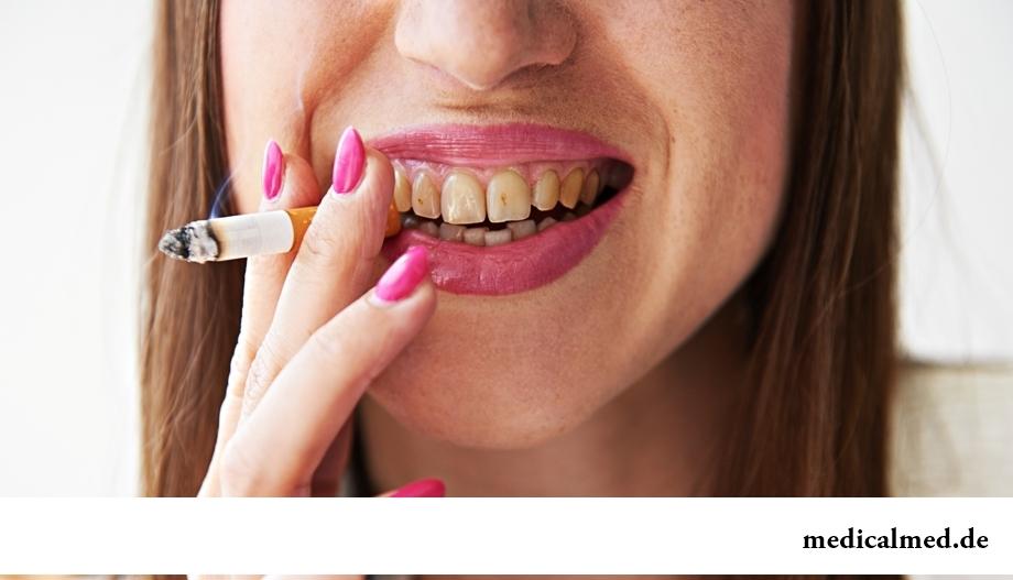 Несоблюдение гигиены полости рта