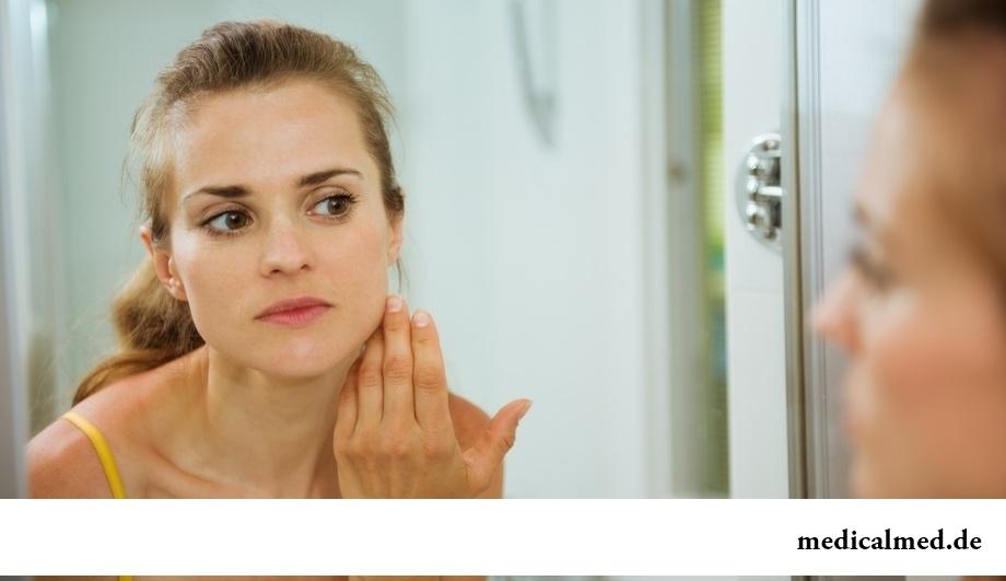 Ухудшение состояния кожи - один из симптомов почечной недостаточности