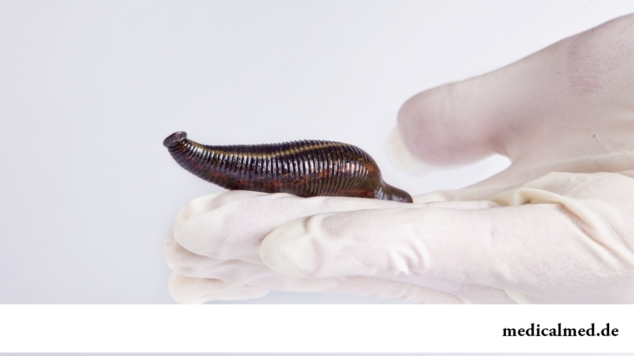 Гирудопластика