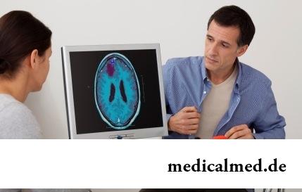 12 заблуждений об эпилепсии