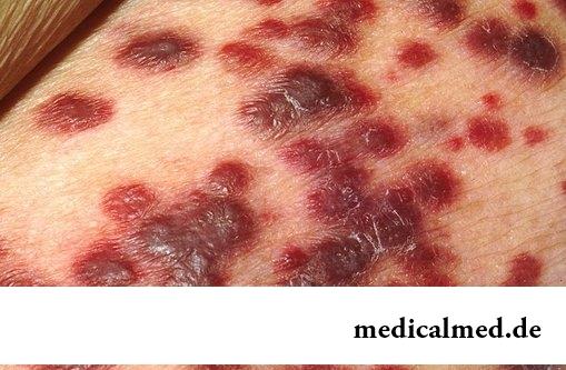 Симптомы Саркома Капоши