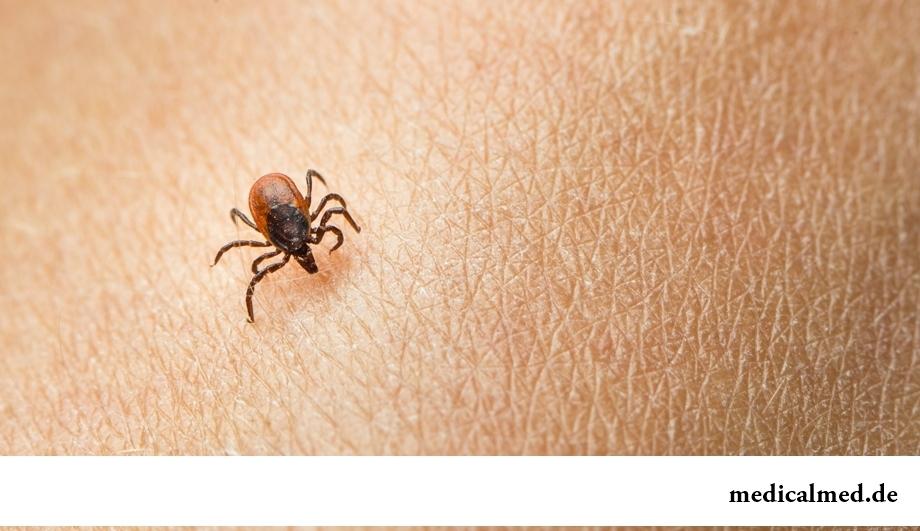 Опасные летние болезни: энцефалит