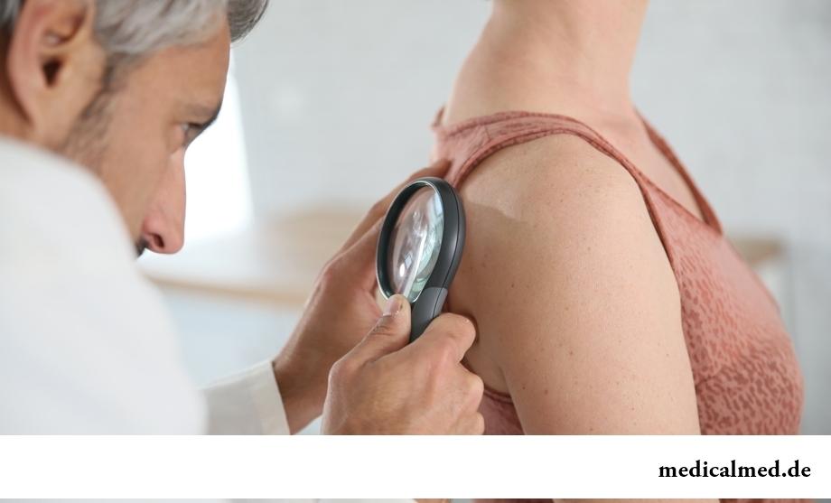 Рак кожи: распространенные мифы