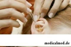 Рекомендованное использование А-церумена при наличии серных пробок - 3-4 дня