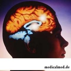 Абсцесс головного мозга – это скопление гноя в черепе человека