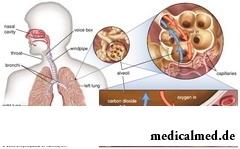 Респираторный ацидоз