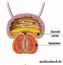 Нарушения работы мочевыделительной системы - симптом аденомы простаты