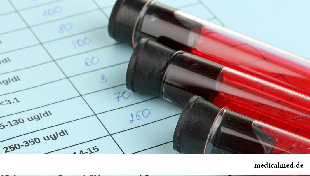 Определение уровня АКТГ в крови