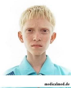 Альбинизм у ребенка