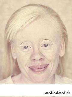 Альбинизм у взрослых