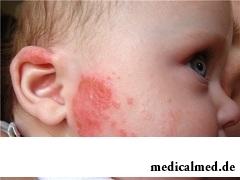 Характерный признак аллергии у детей - сыпь
