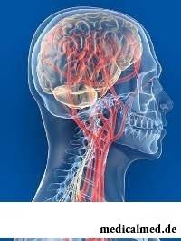 Ангиодистония проявляется при нарушении тонуса сосудов