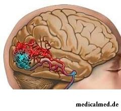 Гипертензия и головные боли - симптомы ангиомы головного мозга