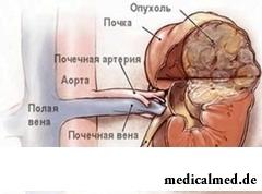 Расположение ангиомиолипомы почки