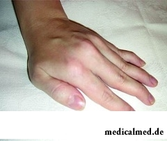 Анкилоз - неподвижность суставов