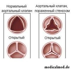 Аортальный стеноз - сужение просвета устья аорты из-за изменений клапана