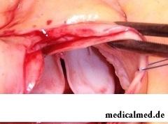 Протезирование клапана аорты - радикальный способ лечения аортального стеноза