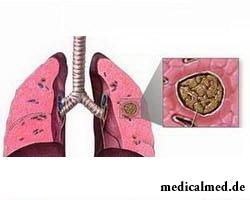 Начальная форма аспергиллеза легких