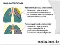 Виды ателектаза