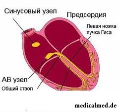Механизм образования атриовентрикулярной блокады