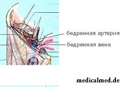 Бедренная грыжа - опухолевидное образование в области бедра
