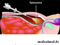 Единственный метод лечения бедренной грыжи - хирургическая операция