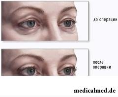 Глаза женщины до и после блефаропластики