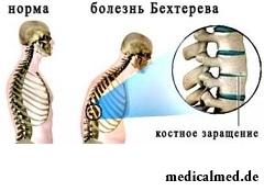Воспаление межпозвоночных суставов - болезнь Бехтерева
