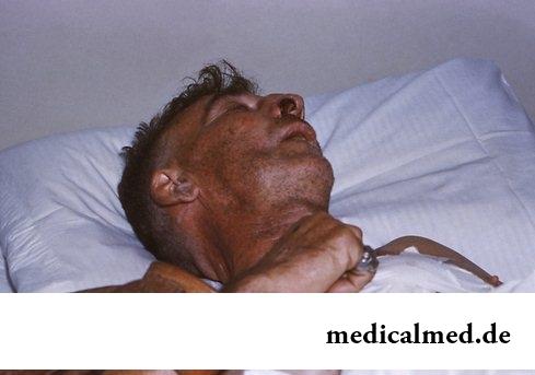 Человек заболевший бешенством