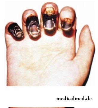 schwarze pest symptome