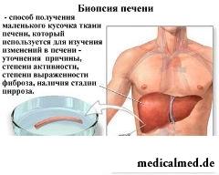 sterben an leberzirrhose