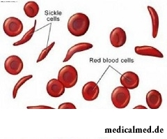 Аутоиммунная гемолитическая анемия - разрушение эритроцитов