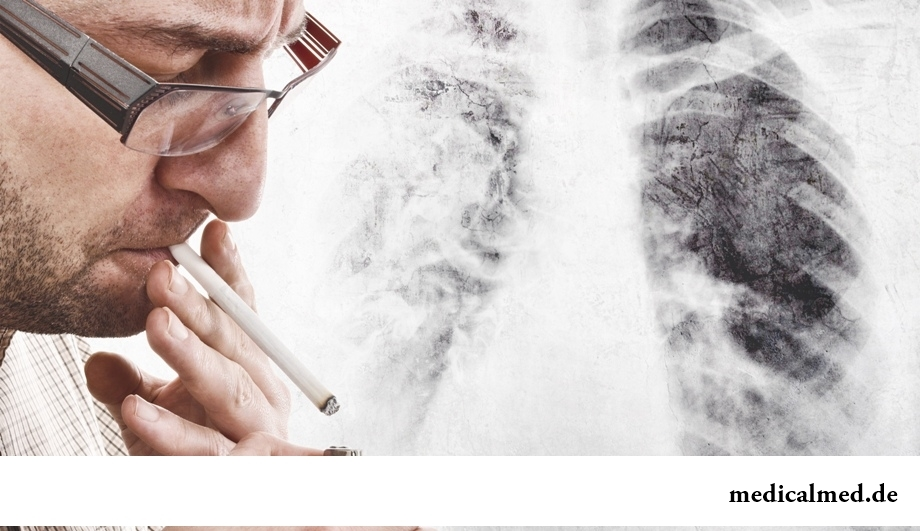 Легкие курильщика - описание, фото, заболевания