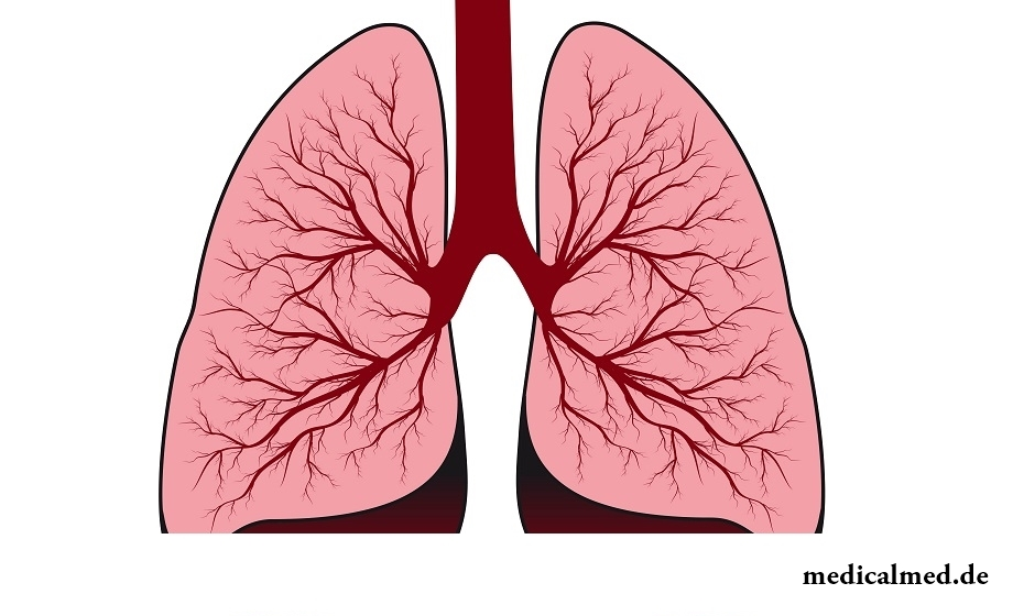 Die Lungen - der Aufbau, die Funktion, die Entzündung