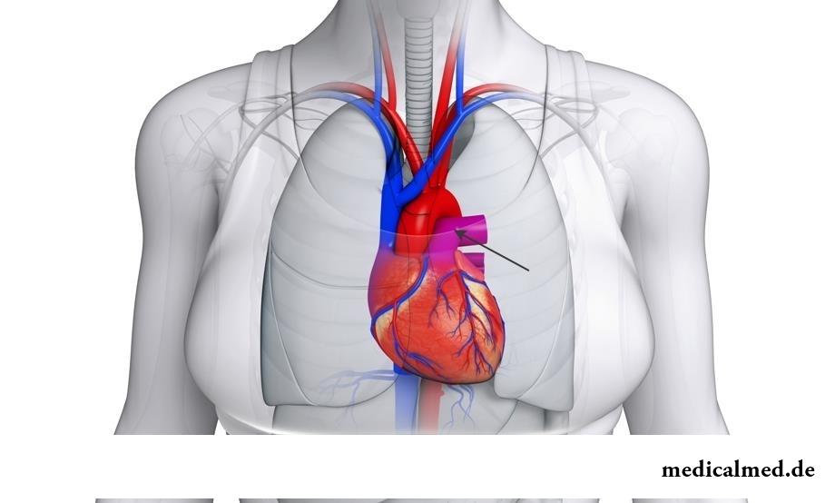 Die Lungenader - der Zweig, den Blutdruck, die Klappe