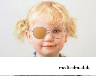 Ребенок болеющий амблиопией