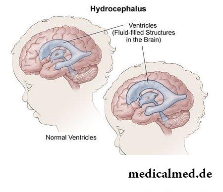 meningitis merkmale bei kindern