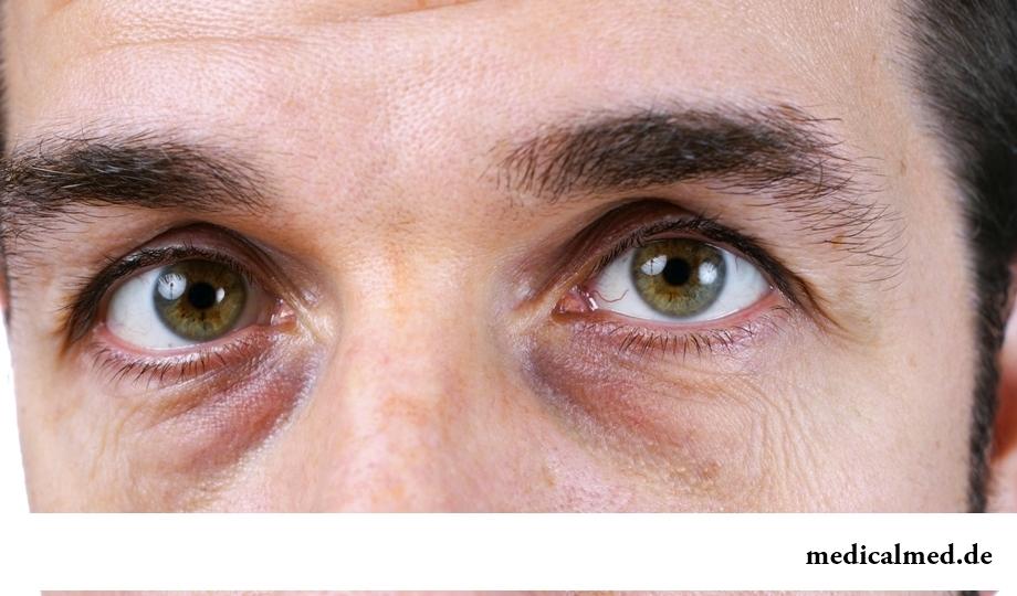 Мешки под глазами: основные причины появления