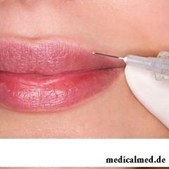 Пластика губ при помощи наполнителей