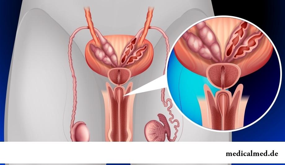 prostata aufbau zonen