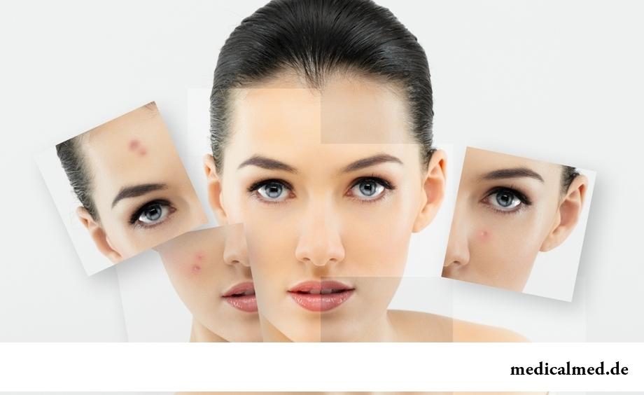 Высыпания на лице: о каком заболевании могут свидетельствовать?