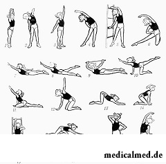 Гимнастика - основа лечение сколиоза