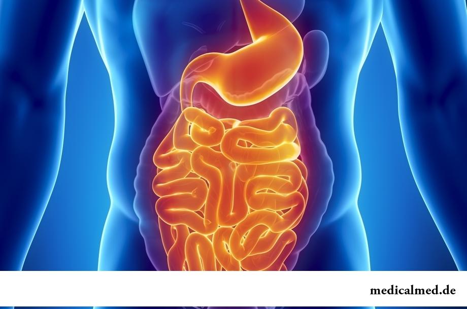 Der Dünndarm — die Funktion, die Erkrankung, den Bruch