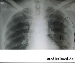 Диагностирование трещины ребра осуществляется посредством медицинского осмотра и рентгеновского снимка