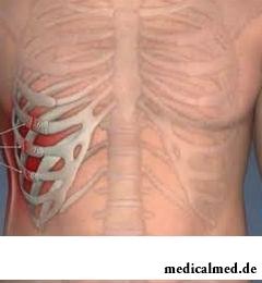 Трещина ребра является частичным нарушением целостности или неполным переломом ребра без смещения костных отломков