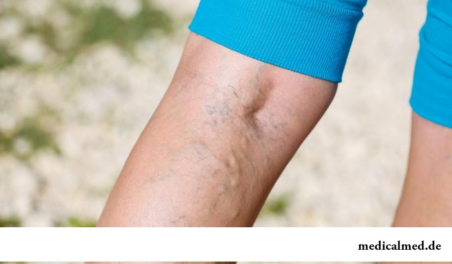Тромбоз глубоких вен: распространенные симптомы
