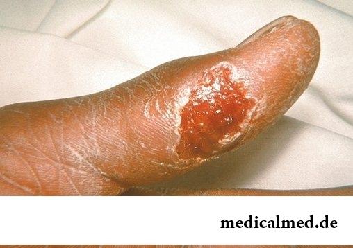 Симптомы туряремии у больного