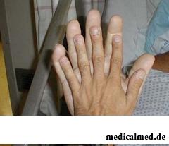 Кисти рук при акромегалии