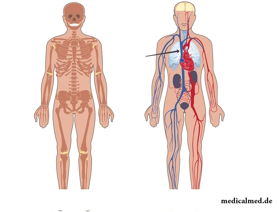Obere hohle Vene — das System, das Syndrom sdawlenija