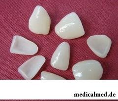 Виниры - специальные пластинки для покрытия зубов